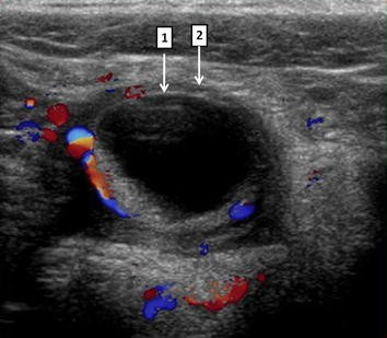 Primary cystic peritoneal masses and mimickers: spectrum of diseases