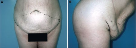 Abdominoplasty Complications: A Comprehensive Approach for the
