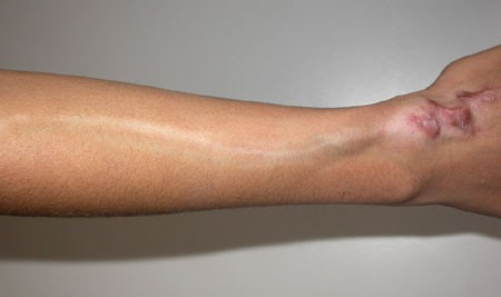 Linear Hypopigmentation After Triamcinolone Injection: A