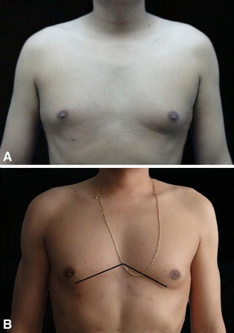 Dynamic-Definition Male Pectoral Reshaping and Enhancement in Slim