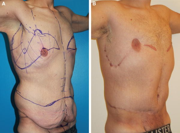 Enhancing Masculine Features After Massive Weight Loss