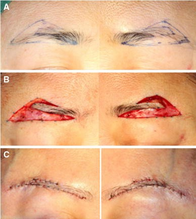 A Novel Supra-Brow Combined with Infra-Brow Lift Approach ...