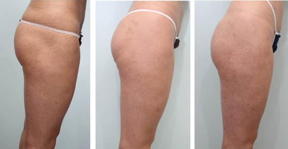 Buttock Lifting Using Elastic Thread (Elasticum®) with a New