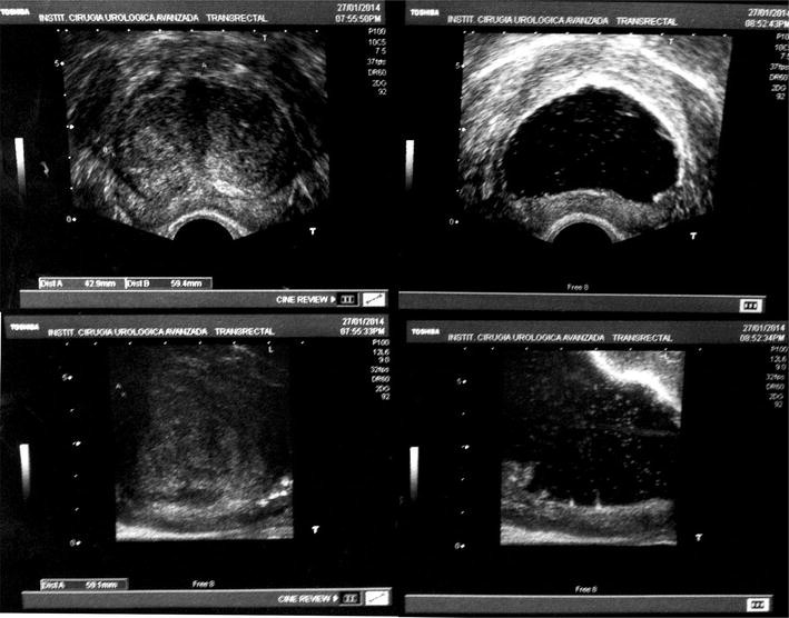 Common trend: move to enucleation—Is there a case for