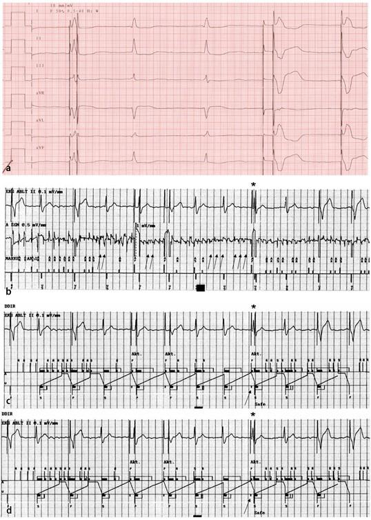 Analyse von Schrittmacher-EKGs | SpringerLink