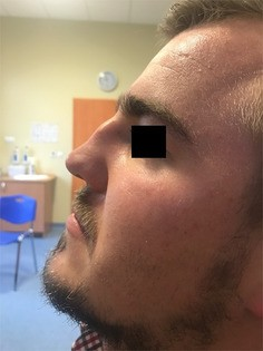 Complications in septoplasty based on a large group of 5639