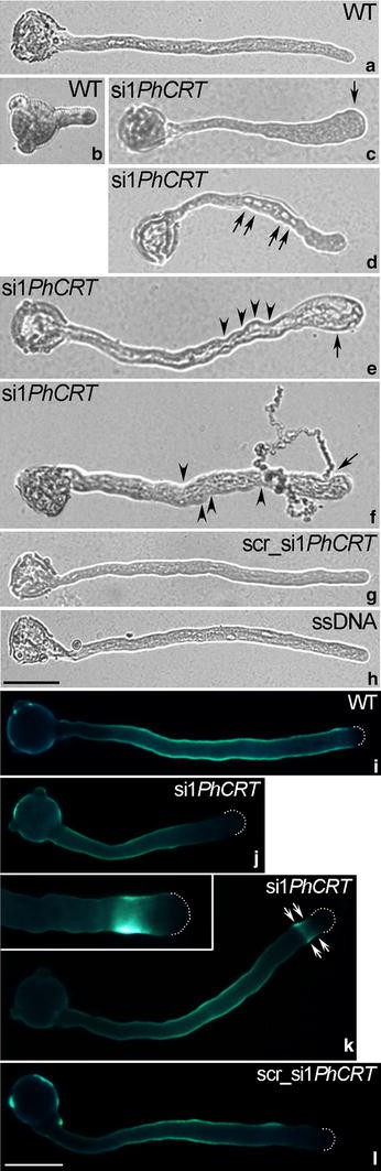 Calreticulin is required for calcium homeostasis and proper pollen