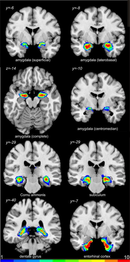 Cytoarchitectonic mapping of the human amygdala, hippocampal region ...