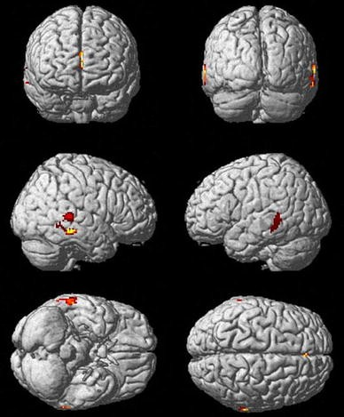 In Autism Brain Shows Unusual Thinning >> Changes In Grey Matter Development In Autism Spectrum Disorder