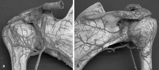 Frakturen des proximalen Humerus | SpringerLink