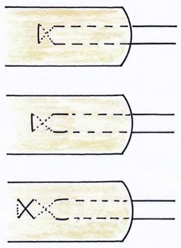 Bj Techniken