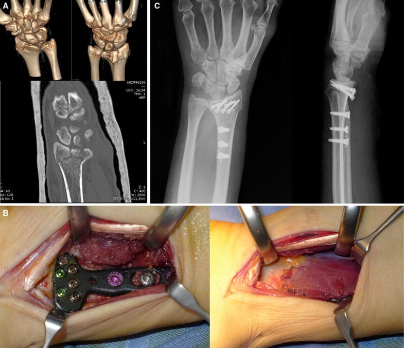 results of volar locking plate osteosynthesis for distal radial fractures Is palmar-locking plate osteosynthesis the solution to blocked plate in 57 cases of radius distal fractures of results of distal radius ulnar acute.