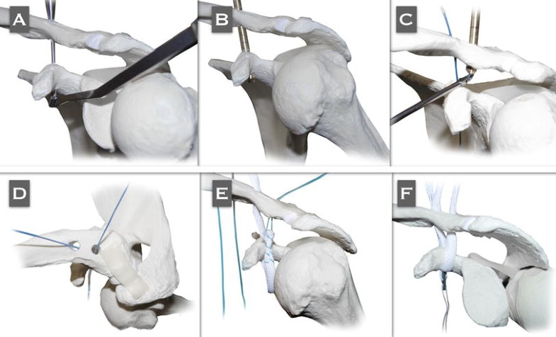 Management of chronic unstable acromioclavicular joint injuries