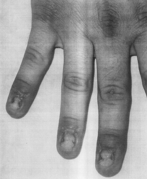 Pincer Nail Deformity Associated with Systemic Lupus