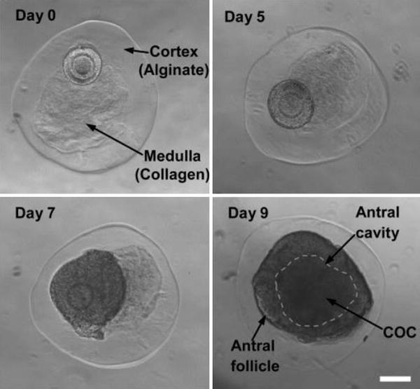 Alginate: A Versatile Biomaterial to Encapsulate Isolated Ovarian