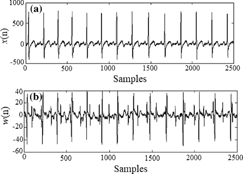 Fetal electrocardiogram modeling using hybrid evolutionary