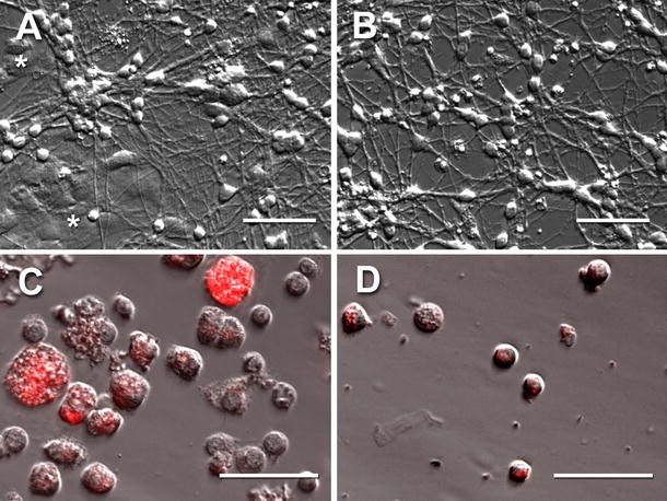 Single Cell Ganglioside Catabolism in Primary Cerebellar
