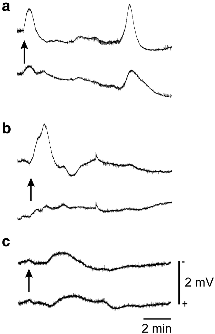 Cortical Spreading Depolarization (CSD) Recorded from Intact ... on