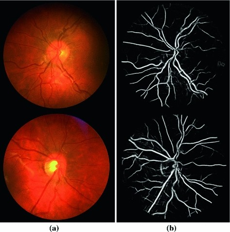 Delineation of blood vessels in pediatric retinal images