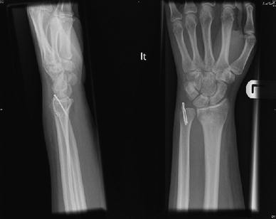 The management of distal ulnar fractures in adults: a review