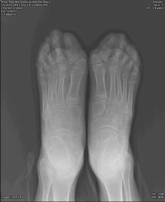 Quality of life of patients with fibrodysplasia ossificans