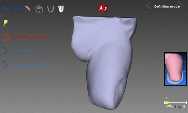 3D interactive environment for the design of medical devices