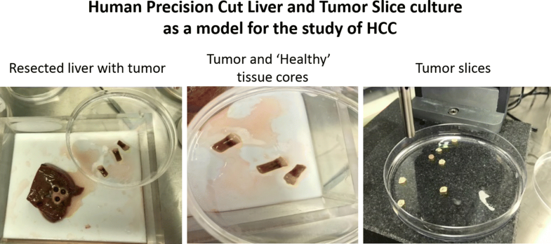 Precision Cut Liver Slices A Versatile Tool To Advance