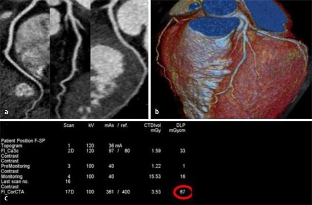 Aktueller Stellenwert von CT und MRT in der Koronardiagnostik ...
