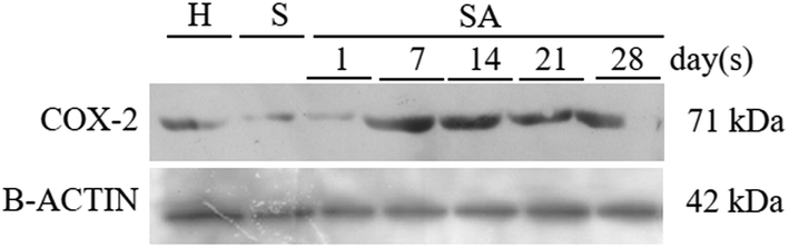Human Amniotic Membrane as a Matrix for Endothelial