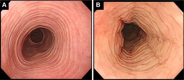 Diagnosis And Treatment Of Eosinophilic Esophagitis In