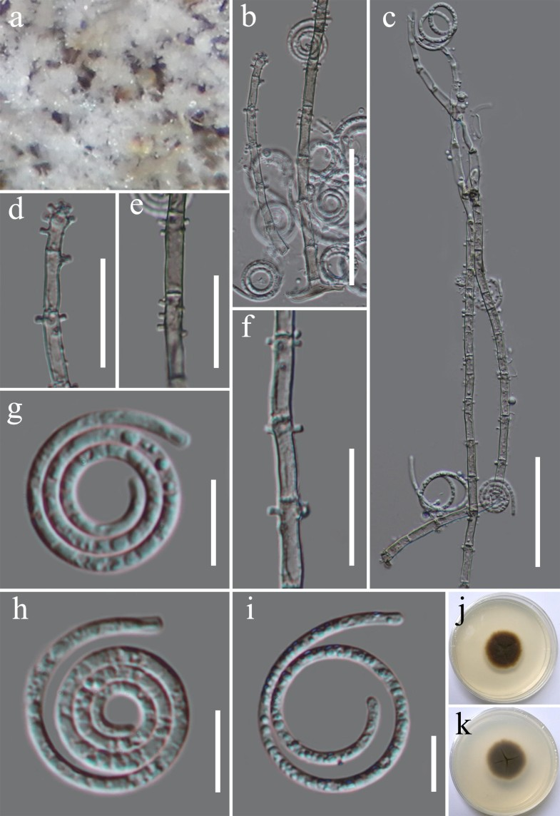 A Taxonomic Reassessment Of Tubeufiales Based On Multi Locus Whelen Edge 761 Wiring Diagram Open Image In New Window