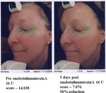 Botulinum Toxins for Facial Lines: A Concise Review
