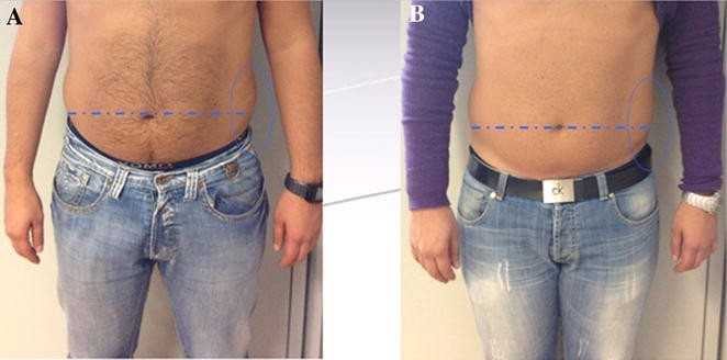 Low Level Laser Therapy And Vibration Therapy For The