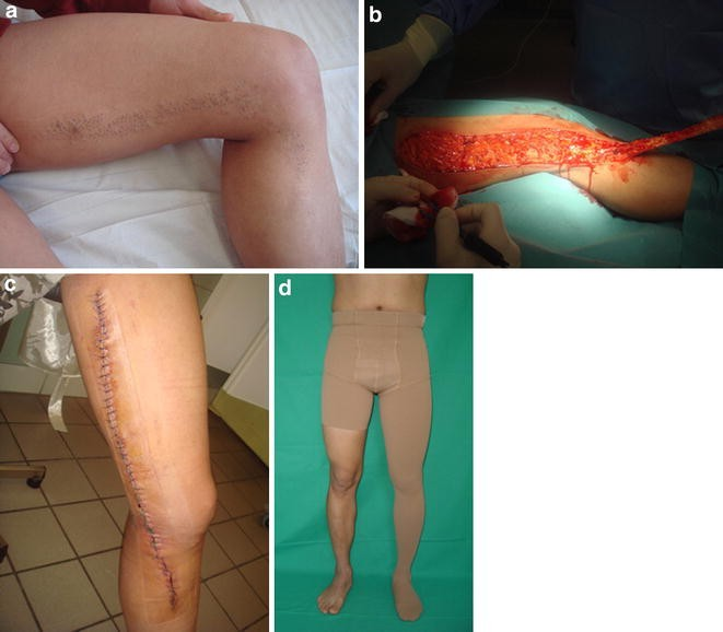 Nevus Comedonicus: An Updated Review | SpringerLink
