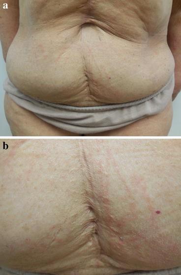 Trastuzumab-Associated Flagellate Erythema: Report in a