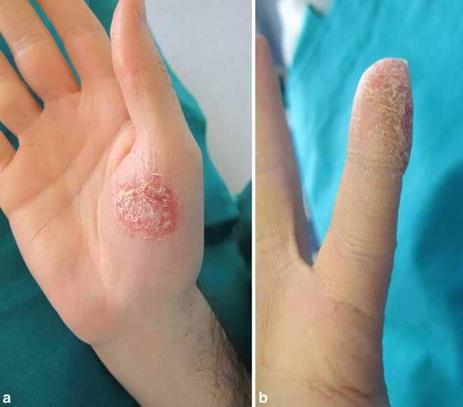 A Case of Acrodermatitis Continua of Hallopeau Following