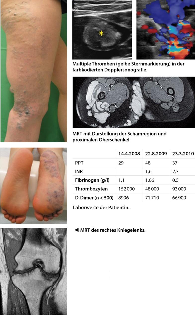 Das bunte Bild kongenitaler vaskulärer Anomalien   SpringerLink