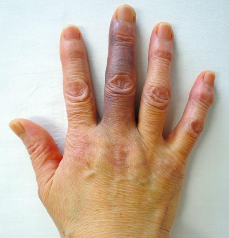 Finger Umgeknickt Blau Und Geschwollen