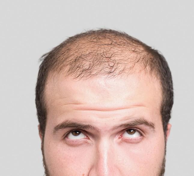 Androgenetische Alopezie Laserlicht Scheint Haarausfall Am Besten