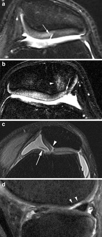 MRI of the Knee: What Do We Miss? | SpringerLink