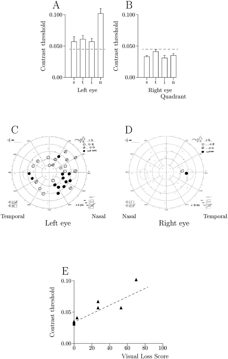 Relationship between visual field loss and contrast threshold figure 3 nvjuhfo Gallery