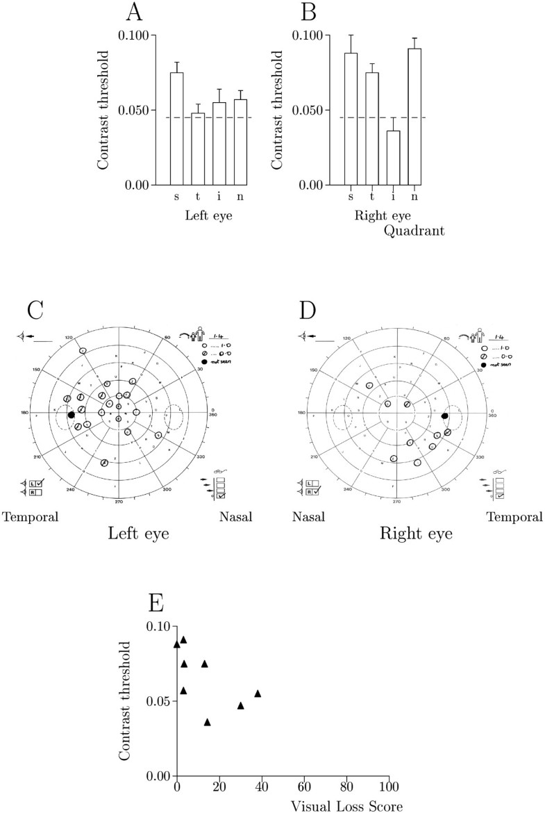 Relationship between visual field loss and contrast threshold figure 4 nvjuhfo Gallery