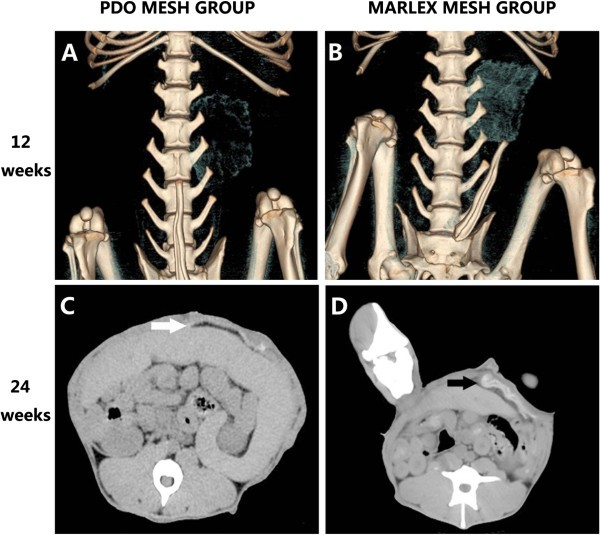 Reconstruction of large-size abdominal wall defect using