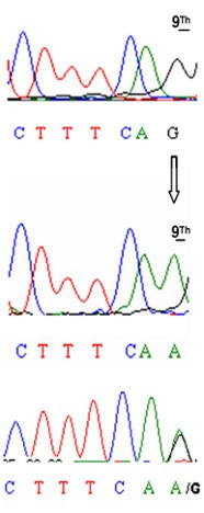 A novel point mutation within the EDA gene causes an exon