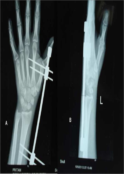 Staged reduction of neglected transscaphoid perilunate fracture ...