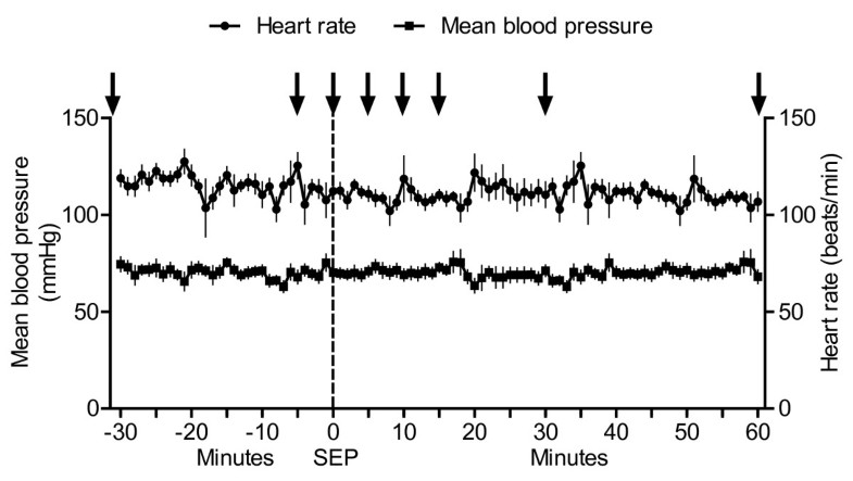 cardiovascular heart rate declines 2018-10-08 deaths from cardiovascular disease increase globally while mortality  because declines in the risk of cardiovascular diseases offset the effect of  only rheumatic heart disease, which had a death rate decrease of.