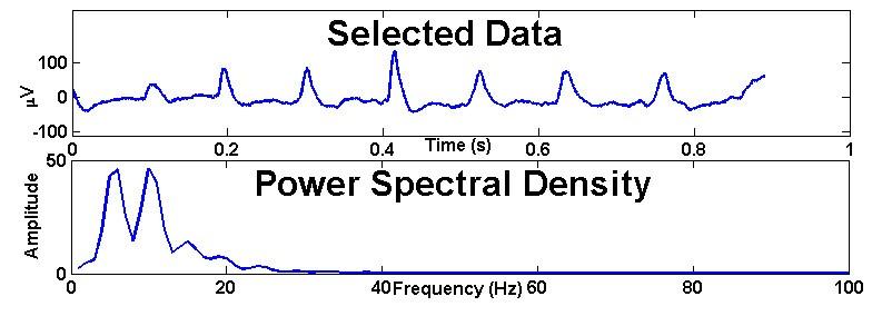 EEGgui: a program used to detect electroencephalogram