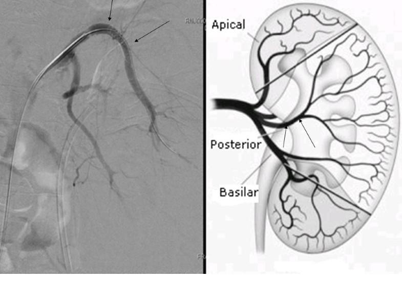Simple Full Body Diagram Kidney