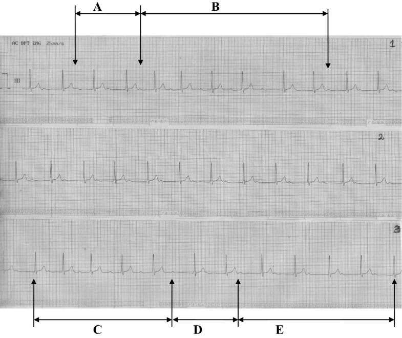 Marked First Degree Atrioventricular Block: an extremely