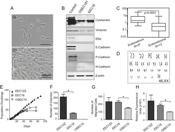 Novel three-dimensional in vitro models of ovarian endometriosis